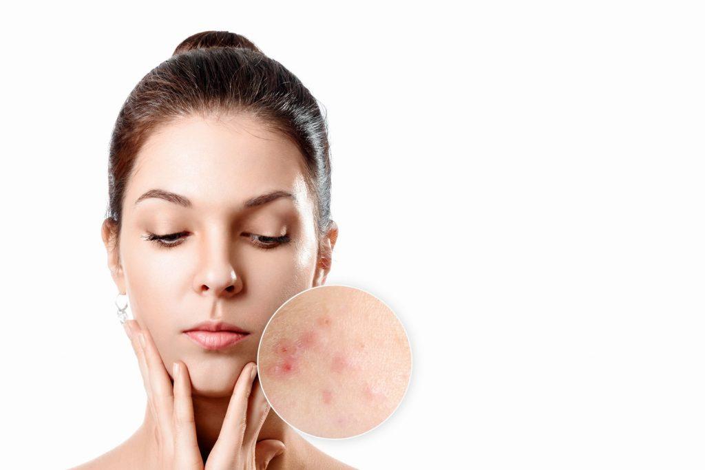 acne qué es, tipos de acné hormonal, detalle del rostro de una mujer joven
